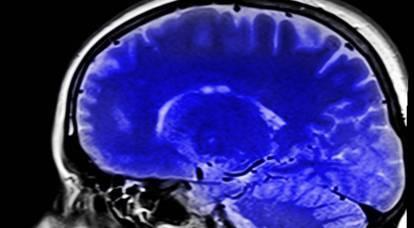 In Russia è stato adottato un programma per l'impianto di microchip nel cervello